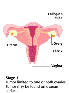 Stage 1 Ovarian Cancer