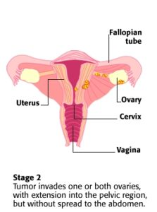Stage 2 Ovarian Cancer Explained How To Increase Your Survival Rate