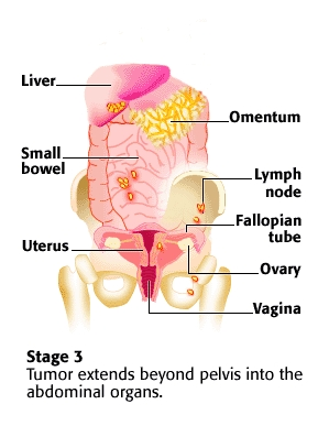 Stage 3 Ovarian Cancer How To Detect It Before It Gets To Stage 4