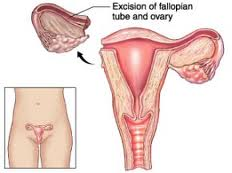 Oophorectomy What It Is And Who Should Consider One