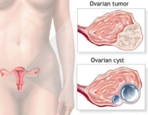 Difference Between Ovarian Cancer and Ovarian Cysts